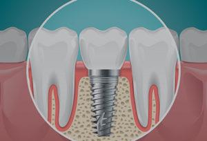 Dental Implant In Pune, Dental Implants In Pune, Life Berries Health Care, Life Berries Health Care