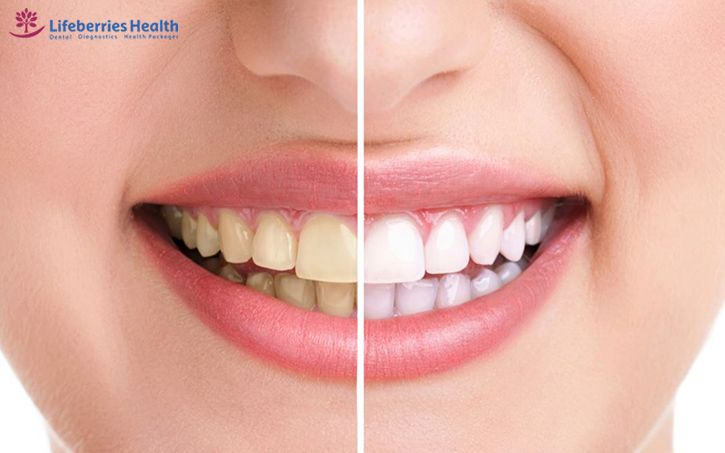 , What Is The Process Of Teeth Whitening Treatment?, Lifeberries Healthcare