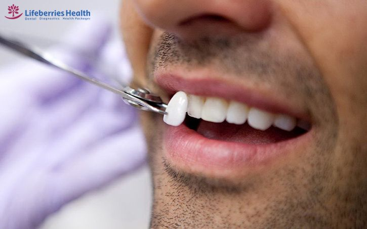 , The Pros And Cons Of Teeth Veeners, Lifeberries Healthcare