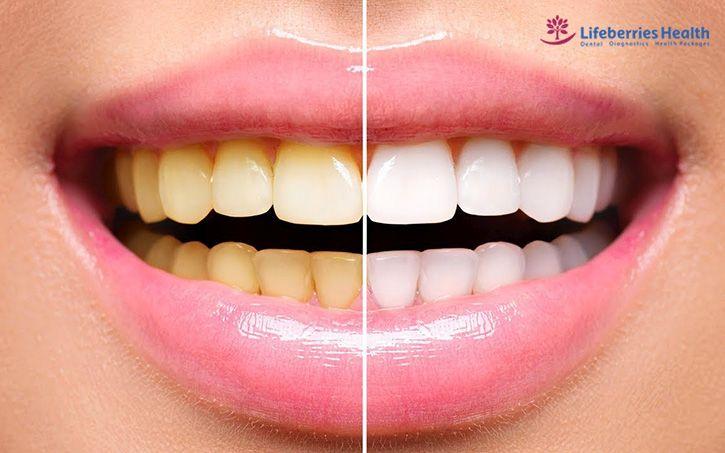 , Benefits Of Teeth Whitening, Lifeberries Healthcare