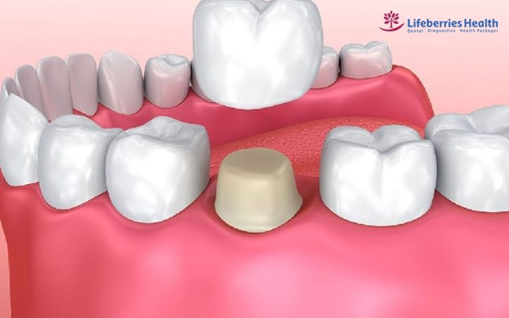 , All You Need To Know About Dental Crown, Lifeberries Healthcare