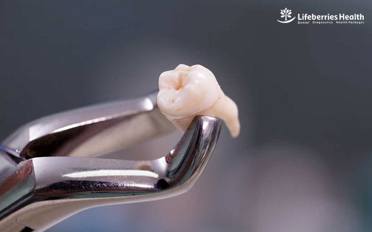 , Top Reasons Why You Need Tooth Extraction, Lifeberries Healthcare